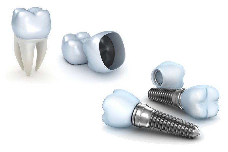 http://ortodoncijadrandjelka.com/wp-content/uploads/2018/04/dentalni-implant-2-1.jpg