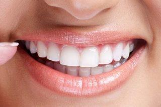 http://ortodoncijadrandjelka.com/wp-content/uploads/2018/04/estetska-stomatologija-1-320x213.jpg